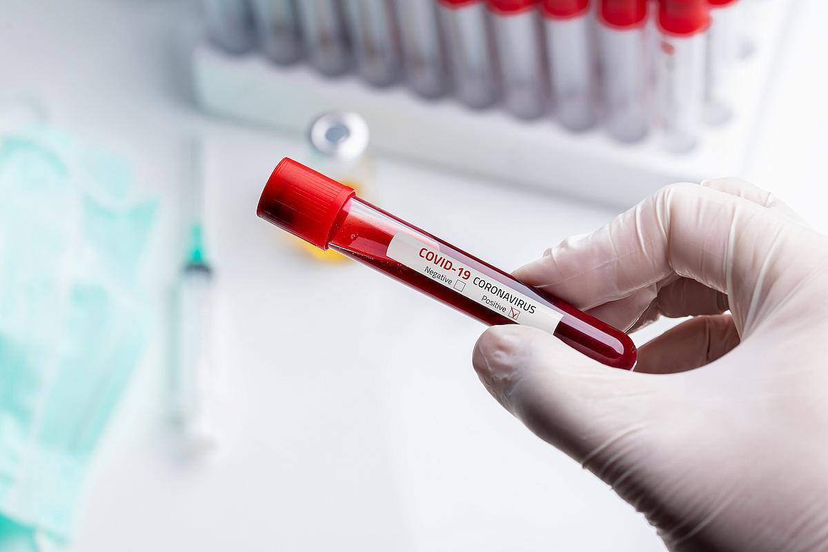 Studiu Solidaritatea Sanitară: Circa 10% dintre lucrătorii din sănătate au fost infectaţi cu SARS-CoV-2