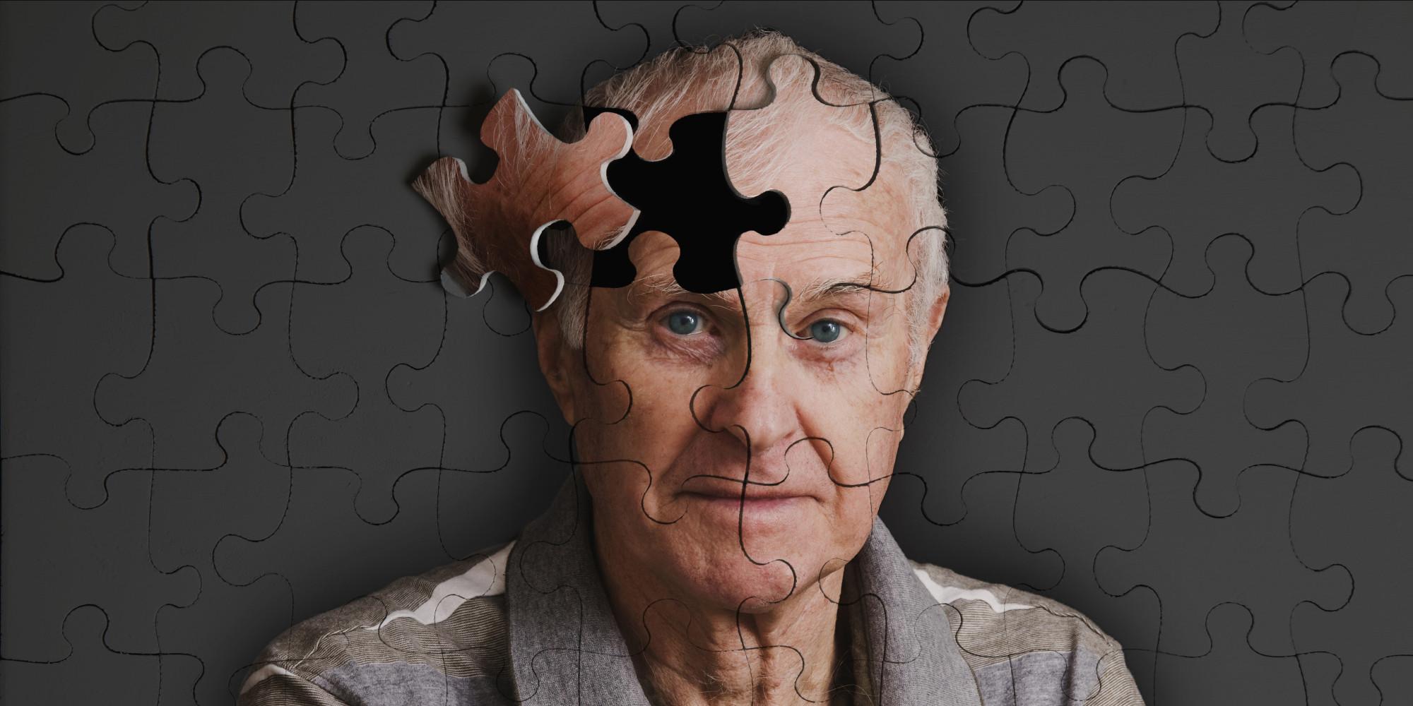 Diagnosticarea bolii Alzheimer cu ajutorul cuprului este cea mai nouă descoperire a unui român