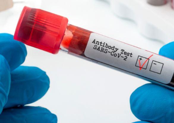 Studiu: Anticorpii împotriva SARS-CoV-2, detectaţi până la şapte luni după infectare