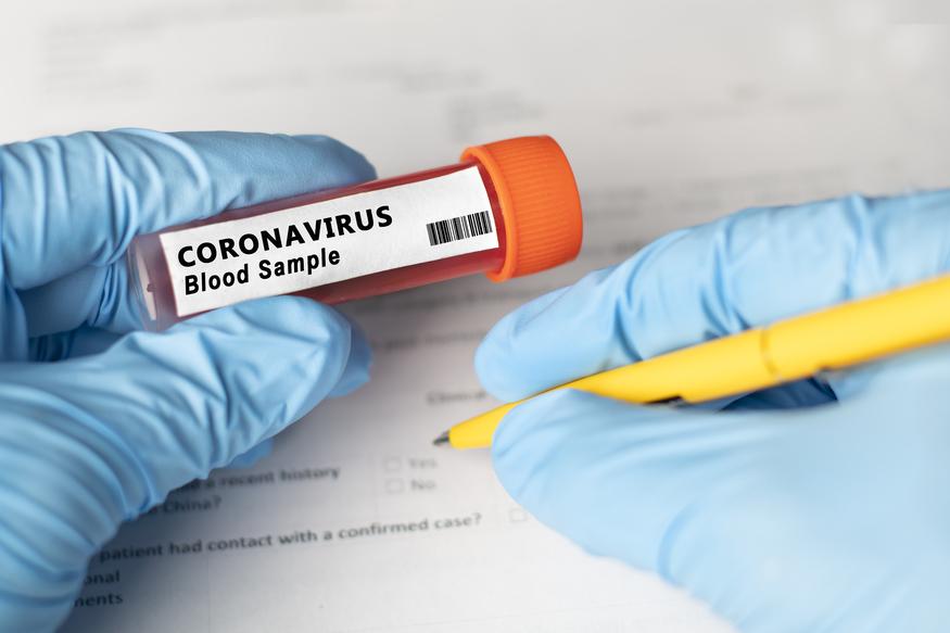 O nouă tulpină de coronavirus identificată în Marea Britanie. Vrăjeală?
