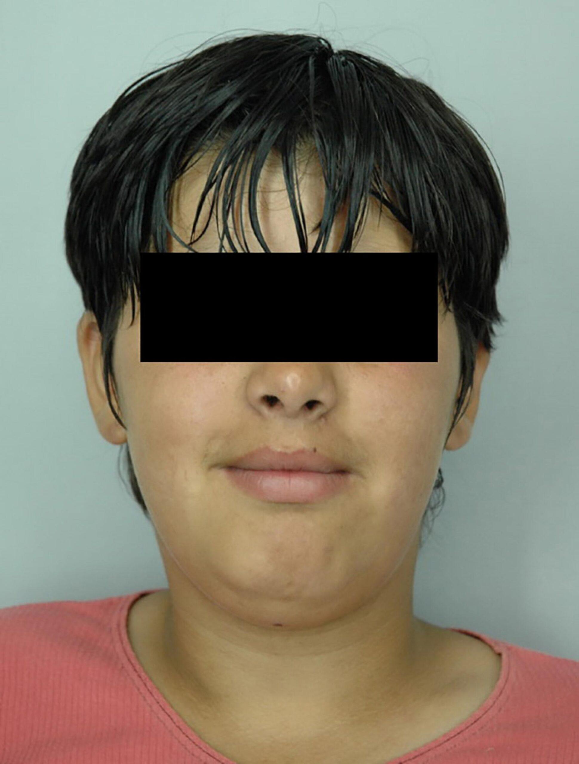 O suceveanca cu handicap exploatata sexual cand era minora a ajuns hoata prin toate colturile tarii