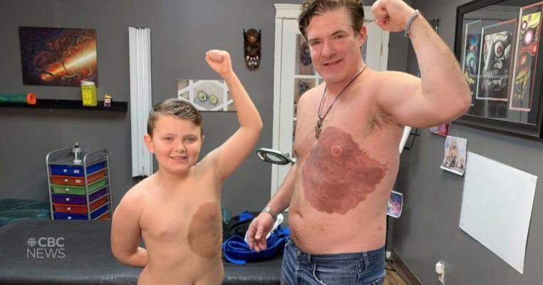 Cel mai dedicat tată: și-a tatuat semnul din naștere al fiului său, în semn de solidaritate