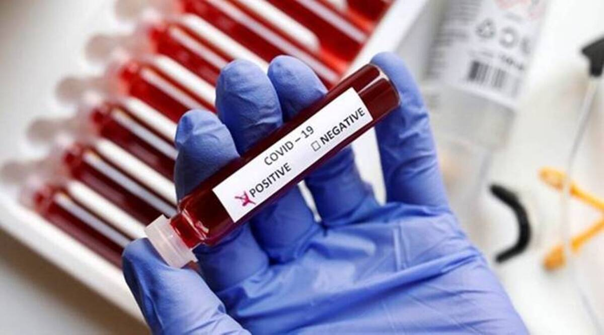 Noi cazuri de coronavirus în Dolj – GAZETA de SUD